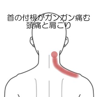 右 腰 後ろ 痛み